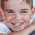 Ορθοδοντική Θεραπεία με Εξαγωγές δοντιών